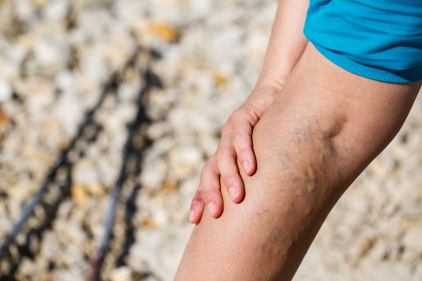 hunchun visszér gyakorlatsor a visszerek a lábakon