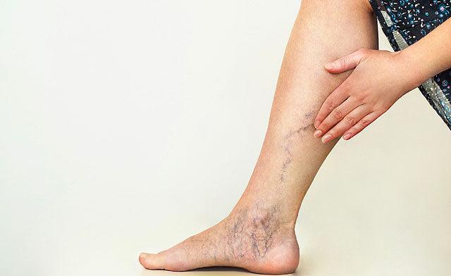 dudor a lábán a visszeres műtét után