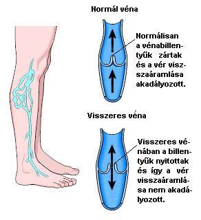 kontraszt zuhany a visszeres lábak számára