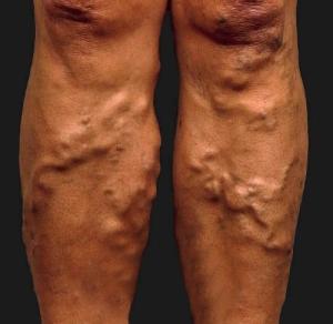 rehabilitáció az alsó végtag visszeres műtétje után hogy a piócák hogyan kezelik a visszéreket a lábakon