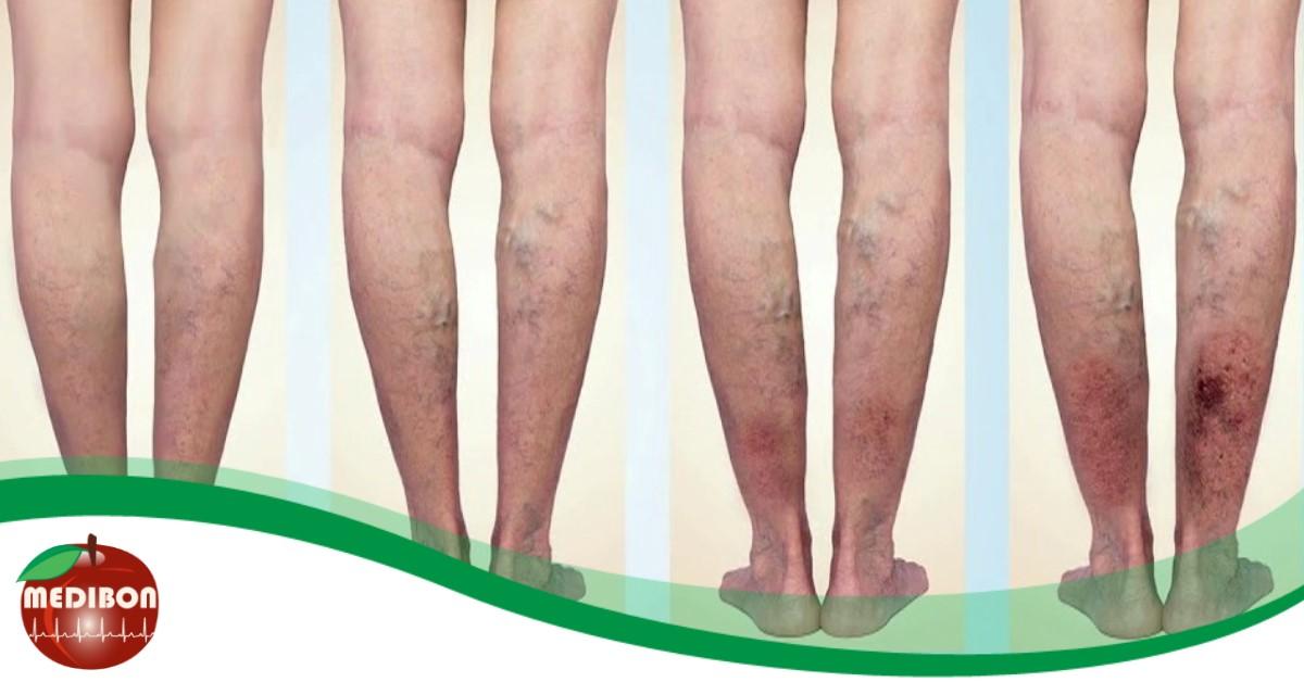 szerecsendió tulajdonságai a visszér ellen síró sebek a lábakon visszérrel