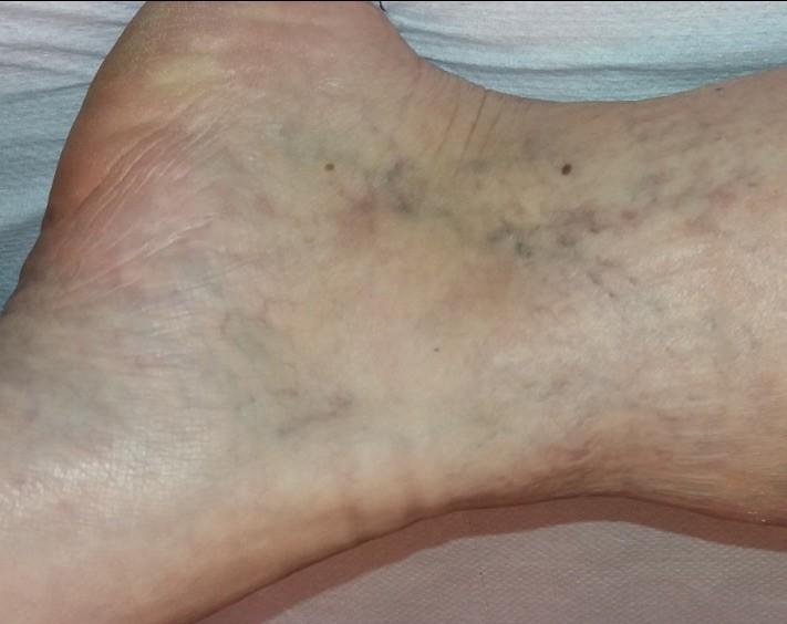 hogy zajlik a láb visszérműtéte