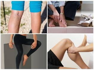 kötöttáru visszerek a lábakon visszér a fiatalokban