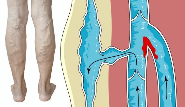 a visszerek aperációja a lábakon