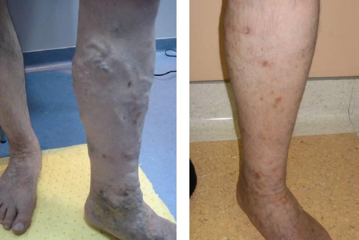 visszerek a kezelés előtt és után