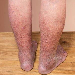 eredmények a láb visszeres műtéte után