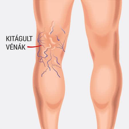 Hogyan gyógyítja meg a varikózisokat a lábakon