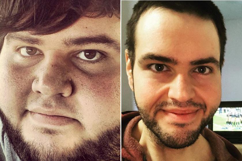 férfi 20 éves visszér milyen kenőcs segít a visszérben