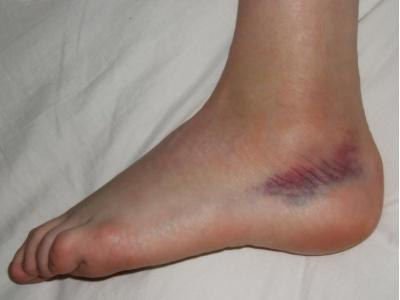 visszérgyulladás a lábak viszkető bőrének kezelése narancs visszér