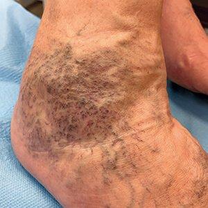 hogyan lehet kenőcsökkel kezelni a lábak varikózisát harisnyanadrág vagy kötszer a visszér ellen