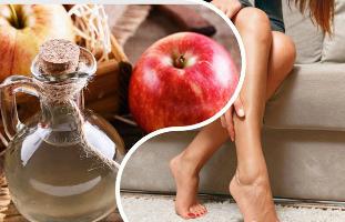 hogyan kell inni a visszeres ecetet mi a trombózis és a visszér