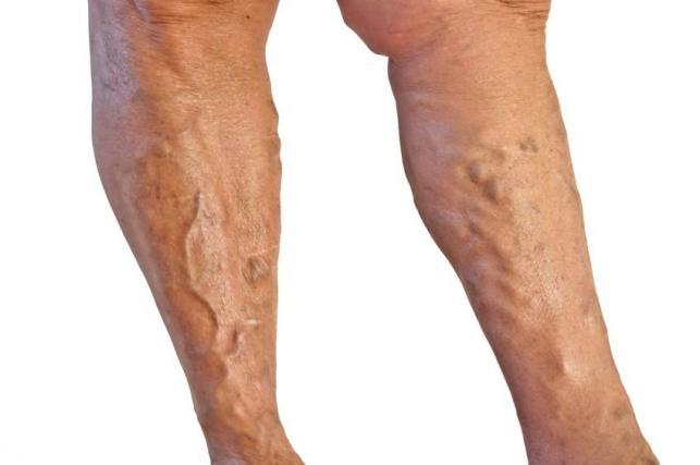Gipsz a visszeres lábakon