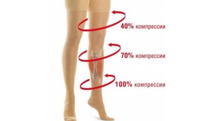 Így segít a kompressziós ruházat