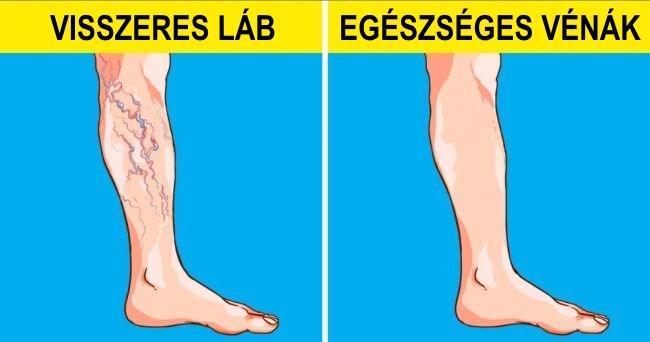 láb egészség visszér