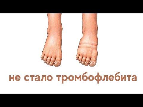 Mi a hiperkoleszterinémia és hogyan kezelik?, Visszér mcb 10