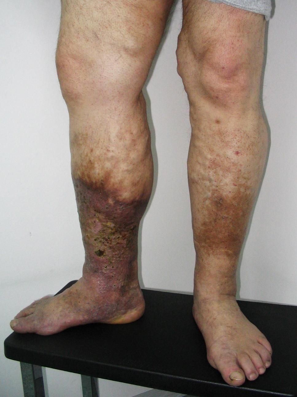 milyen eljárások visszeres lábak esetén a lábakon visszeres olajok