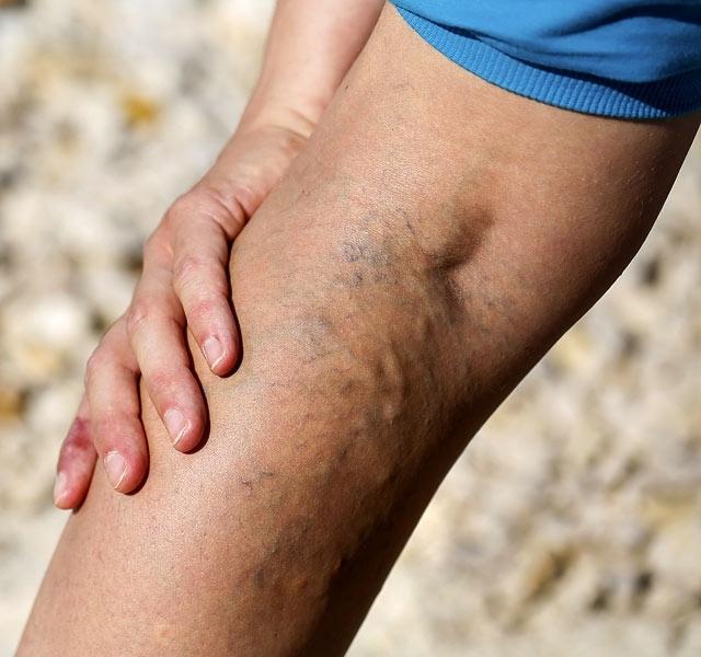 milyen kenőcs a visszerek a lábak súlyos visszerek kezdődtek