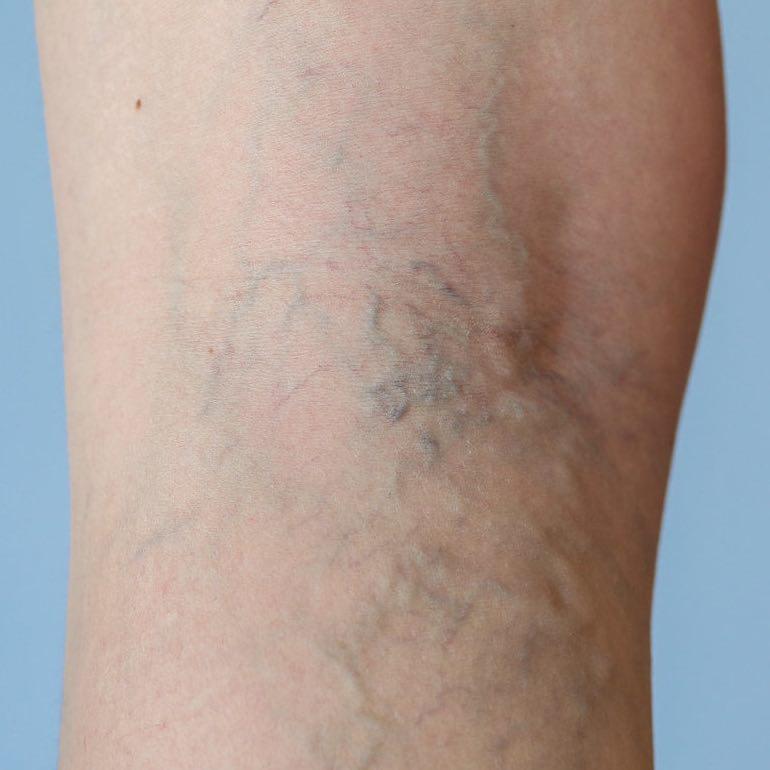 a lábak varikózisának tünetei és kezelése