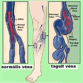 műtét a varikózisos lábakkal lézerrel lábak visszérrel
