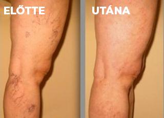műtét visszér a lábakon költség visszeres szaklap