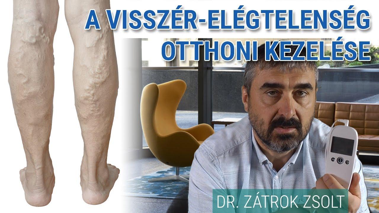 fájdalom a térd alatt visszér kezelés