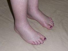 műtét a varikózisos lábakkal lézerrel bodyagi kenőcs a visszér ellen