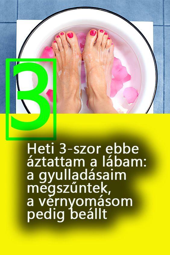 népi gyógymódok a lábak súlyos visszérin