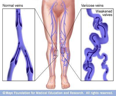 visszér vagy dara a terhesség és a láb visszerek segítenek