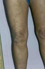 rángatózó lábfájdalmak visszeres