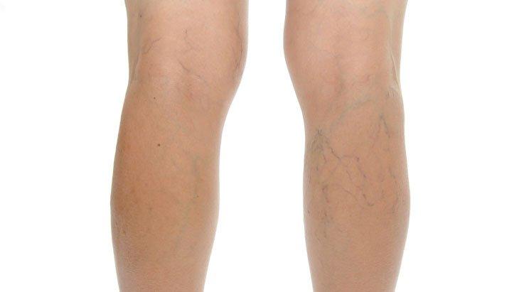 a lábakon lévő visszerek kezelése peroxiddal