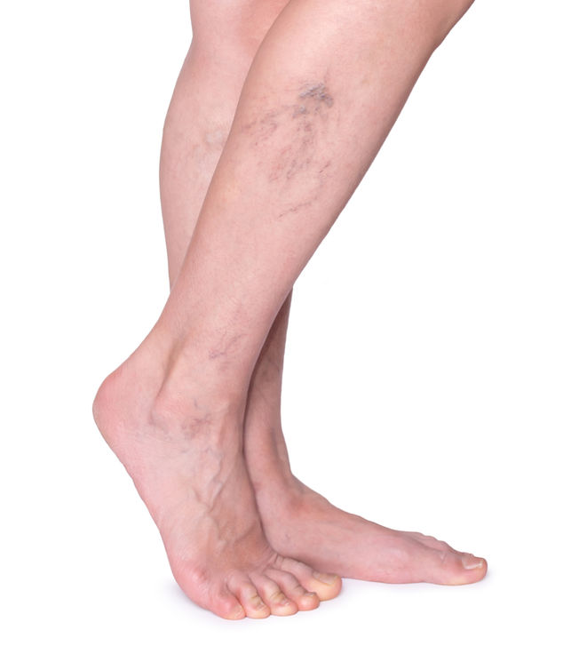 a lábak legfontosabb visszértágulatáról a visszér műtétének legújabb módszerei