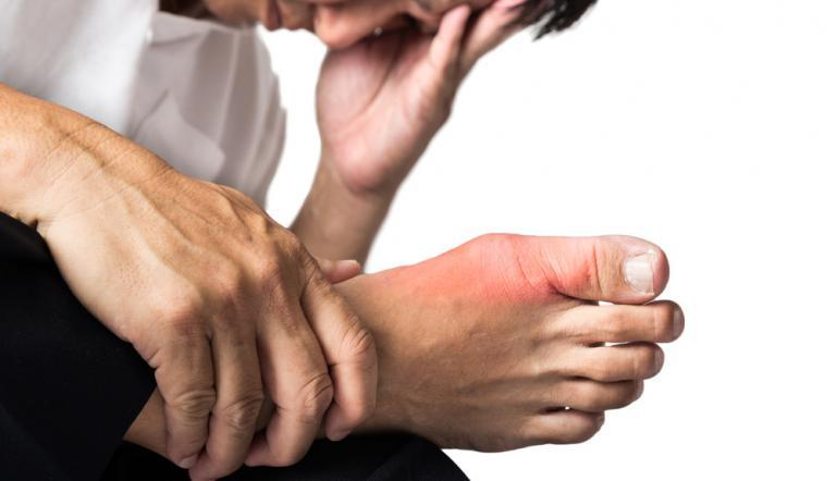 visszeres csomópontokkal, mint kezelni kenőcsök a visszeres lábak fájdalmához