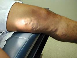lüktető fájdalom a lábban visszérrel