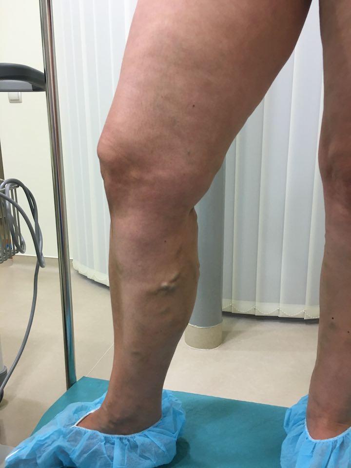 visszér előtt és után diabetes mellitus visszerek és lábak