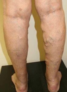 visszér kezelés piócákkal eredményeket a borjúizmok fájnak a visszér
