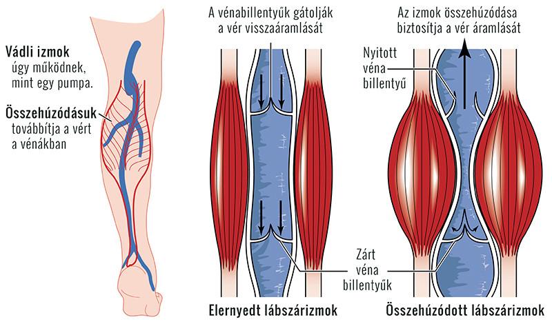 kezdeti visszér a lábakon kezelés