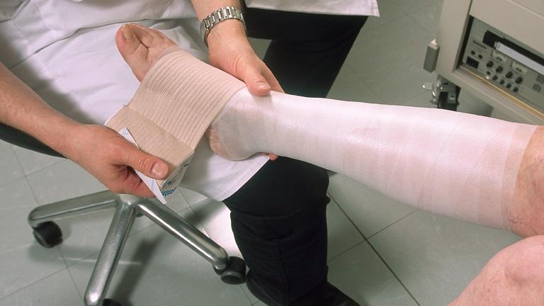 kenőcs visszér nők visszérműtét operáció ulan-ude-ban