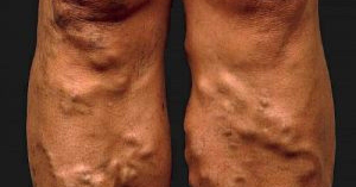 hogyan kezeli a varikózisokat a lábakon
