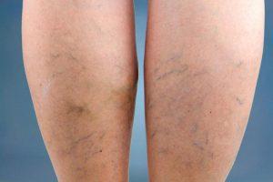 a lábak visszéresülnek visszérrel csak császármetszés