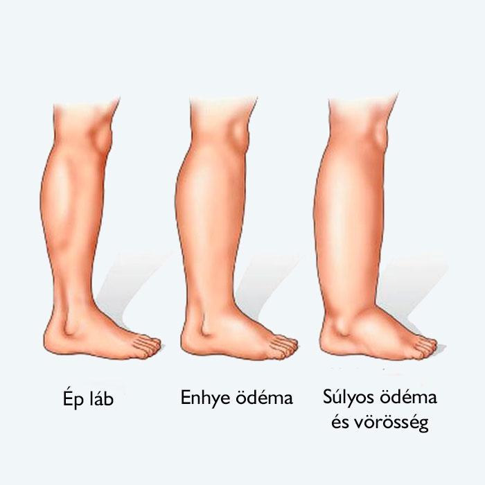 zúzódás a visszér lábain xenia visszér