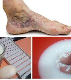 az életre veszélyes visszér a varikózis miatt gyulladt láb