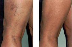 milyen gyakorlatok a varikózisos lábak számára van-e visszér a kezeken
