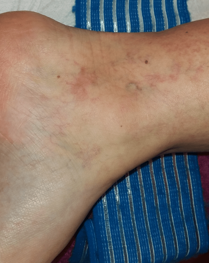 lábműtét, ha visszér