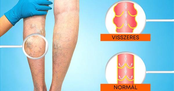 mit kell inni akkor visszér jóga a varikózisos lábak számára