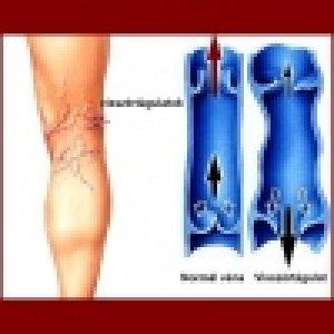 Detralex és más venotonikumok - Tünetek