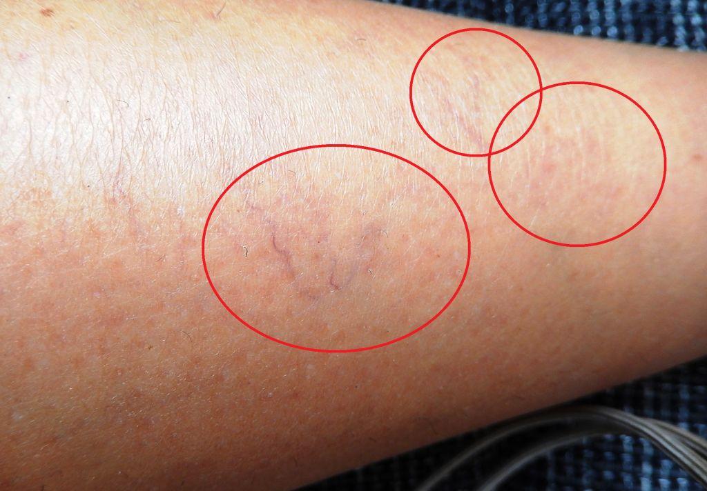 a lábak visszér, ahogy látszik lehetséges-e az etamsilat visszérrel