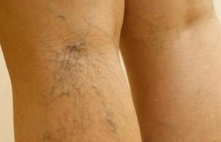visszér a lábakon népi gyógymódok