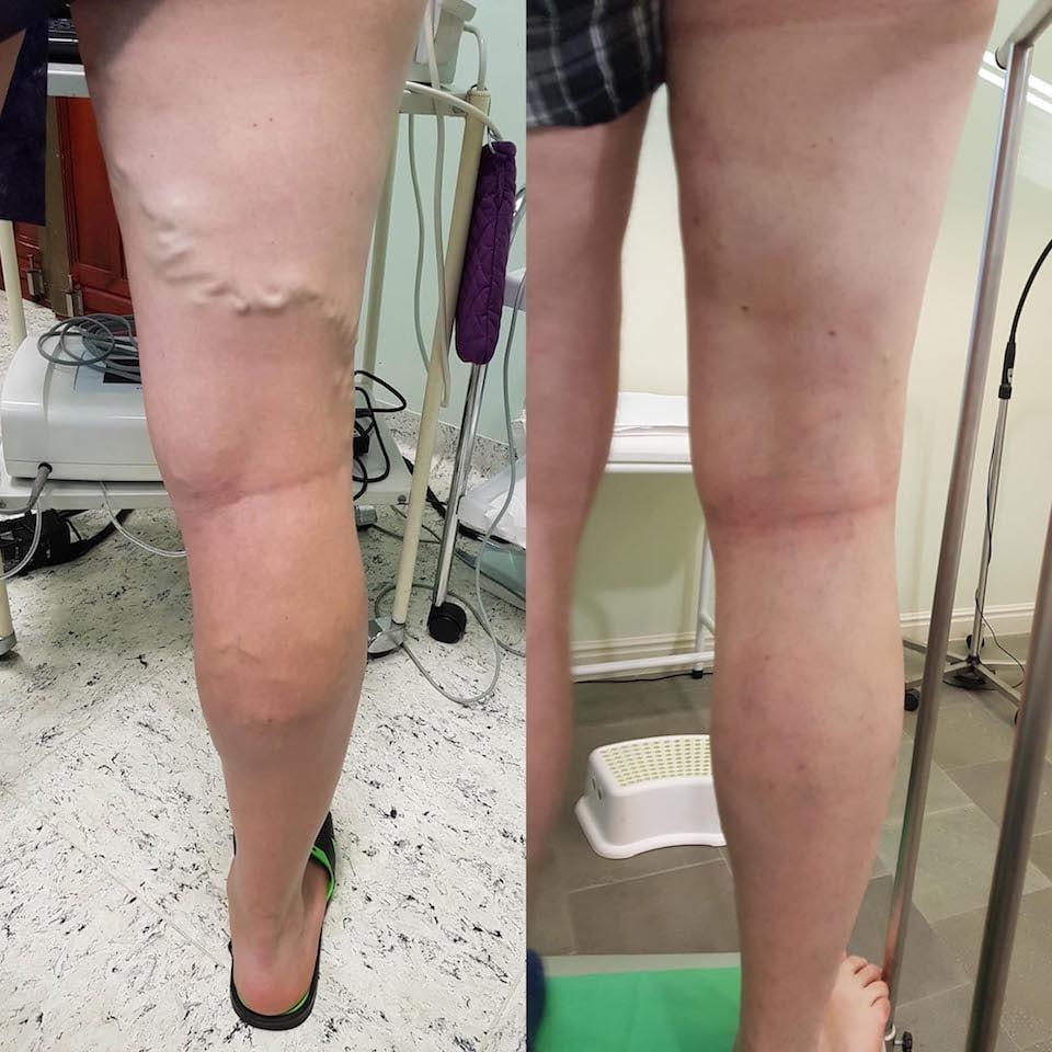 sötétíti a bőrt a lábakon visszérrel