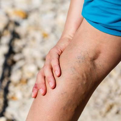 Vörös foltok a lábakon, visszér fotó