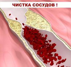 krémek visszeres fájdalom esetén milyen tablettákat ihat a visszér ellen